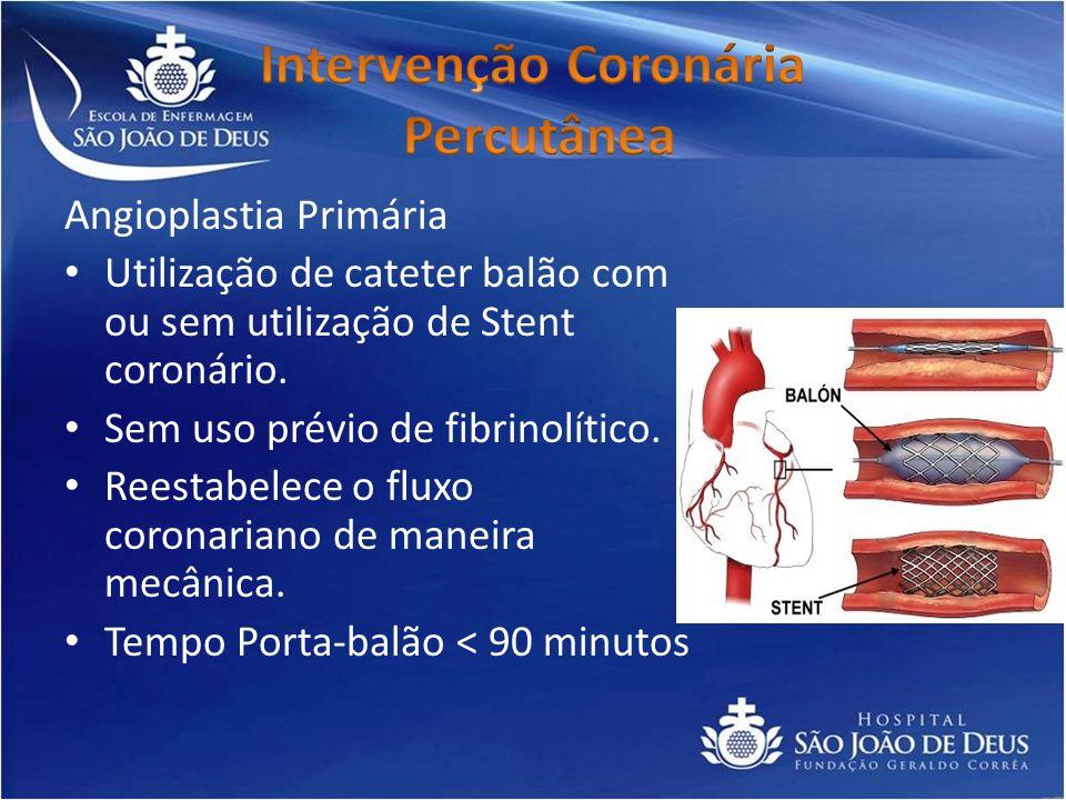 Angioplastia Primária Utilização de cateter balão com ou sem utilização de Stent coronário. Sem uso prévio de fibrinolítico. Reestabelece o fluxo coro