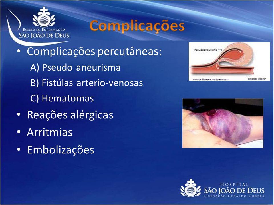 Complicações percutâneas: A) Pseudo aneurisma B) Fistúlas arterio-venosas C) Hematomas Reações alérgicas Arritmias Embolizações