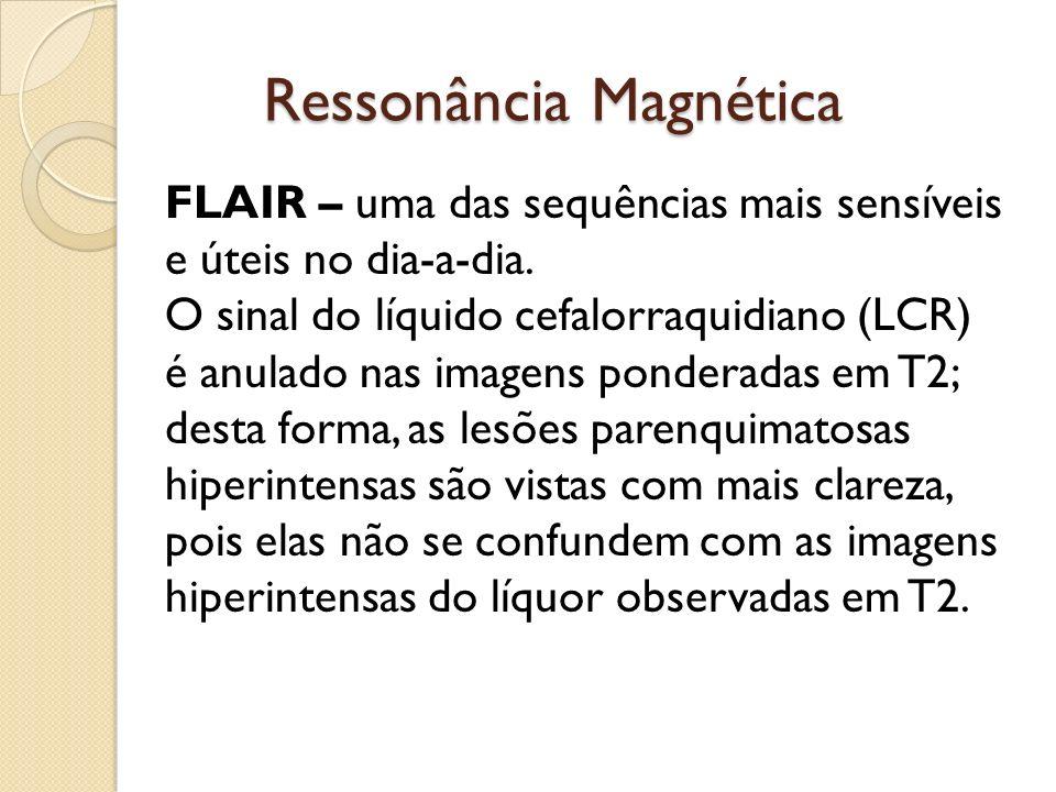 Ressonância Magnética FLAIR – uma das sequências mais sensíveis e úteis no dia-a-dia.