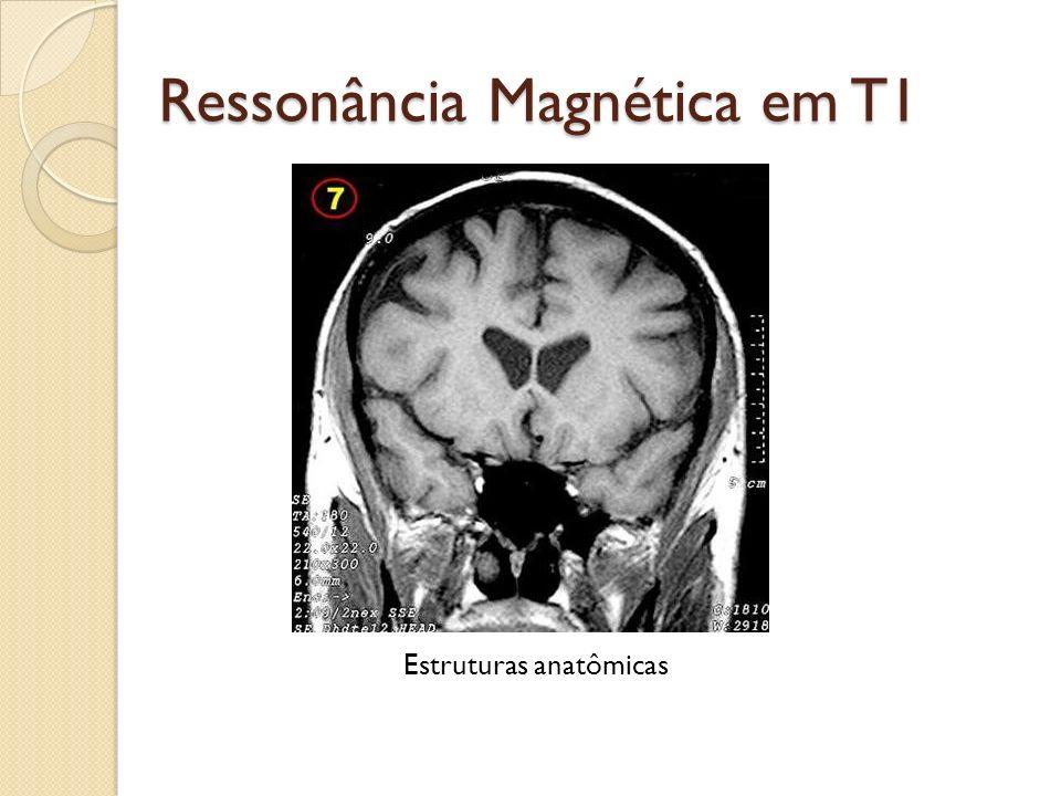 Ressonância Magnética em T1 Estruturas anatômicas