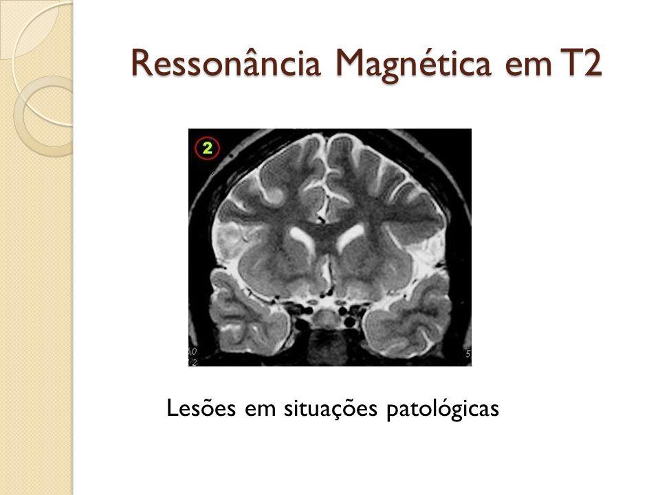 Ressonância Magnética em T2 Lesões em situações patológicas