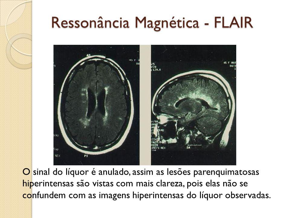 Ressonância Magnética - FLAIR O sinal do líquor é anulado, assim as lesões parenquimatosas hiperintensas são vistas com mais clareza, pois elas não se confundem com as imagens hiperintensas do líquor observadas.