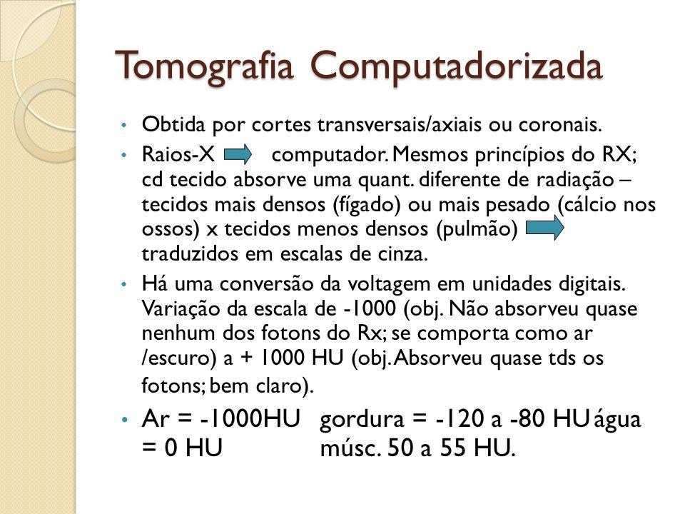 Tomografia Computadorizada Obtida por cortes transversais/axiais ou coronais.