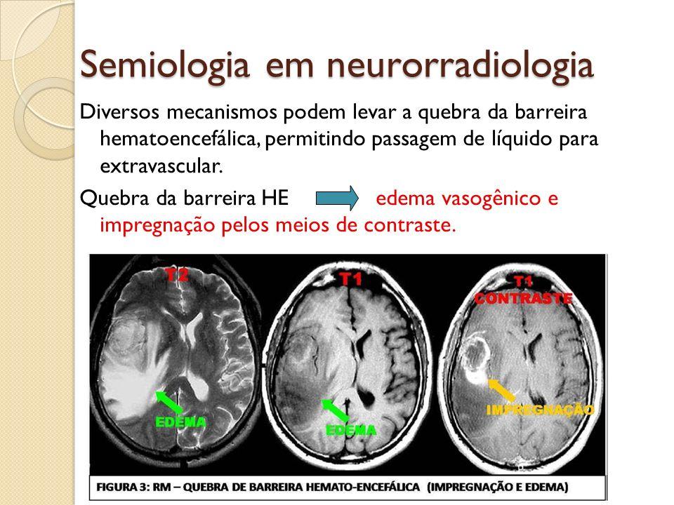 Diversos mecanismos podem levar a quebra da barreira hematoencefálica, permitindo passagem de líquido para extravascular.