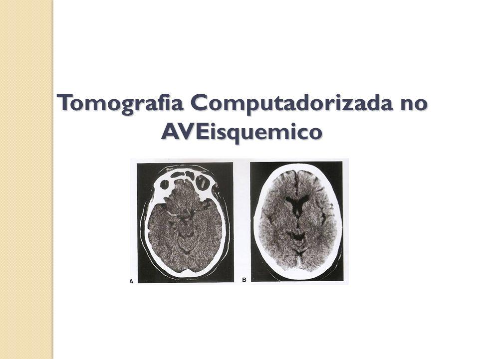Tomografia Computadorizada no AVEisquemico