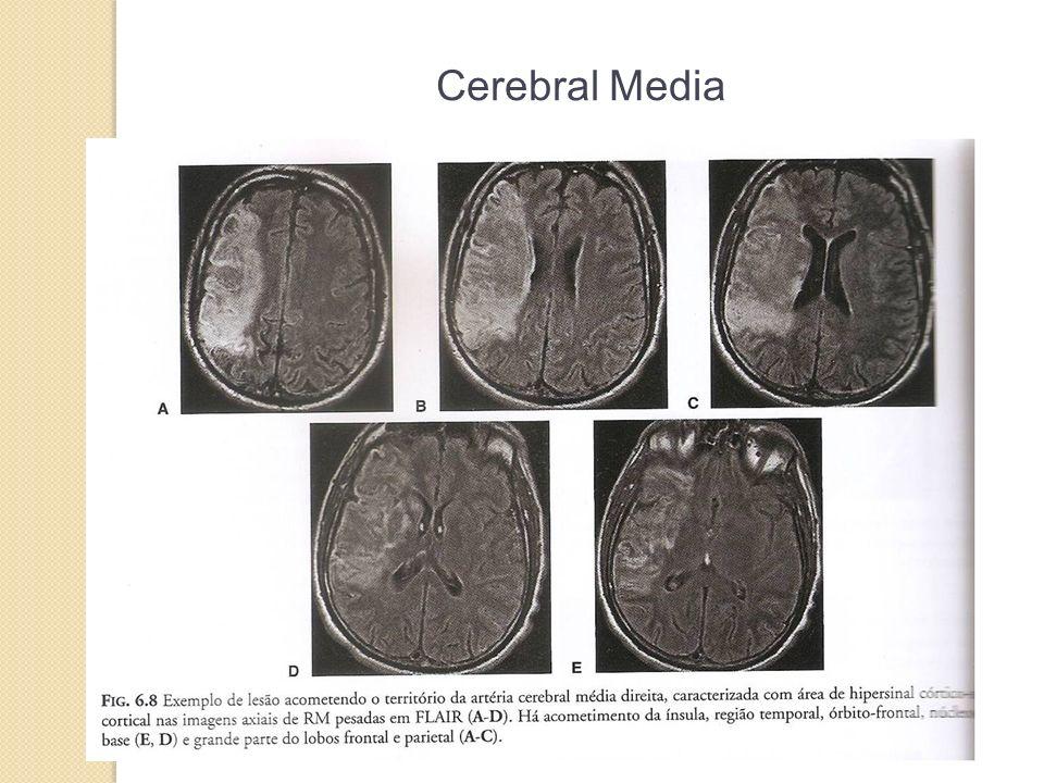 Cerebral Media