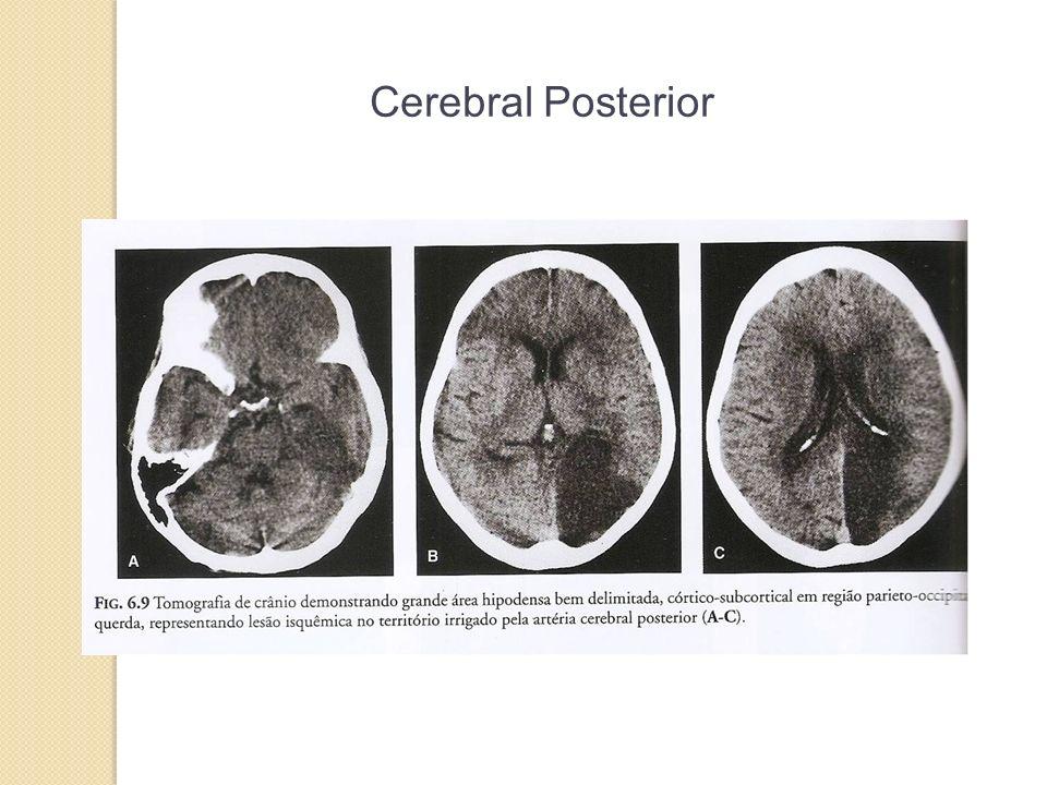 Cerebral Posterior