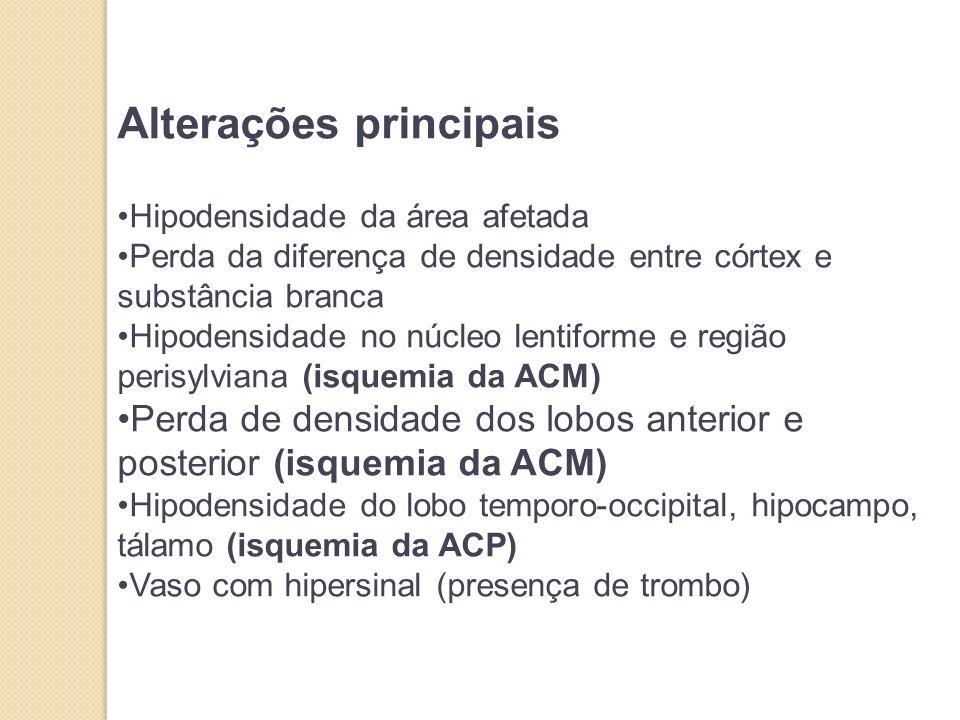 Alterações principais Hipodensidade da área afetada Perda da diferença de densidade entre córtex e substância branca Hipodensidade no núcleo lentiforme e região perisylviana (isquemia da ACM) Perda de densidade dos lobos anterior e posterior (isquemia da ACM) Hipodensidade do lobo temporo-occipital, hipocampo, tálamo (isquemia da ACP) Vaso com hipersinal (presença de trombo)