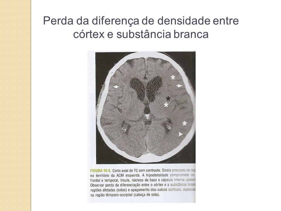 Perda da diferença de densidade entre córtex e substância branca