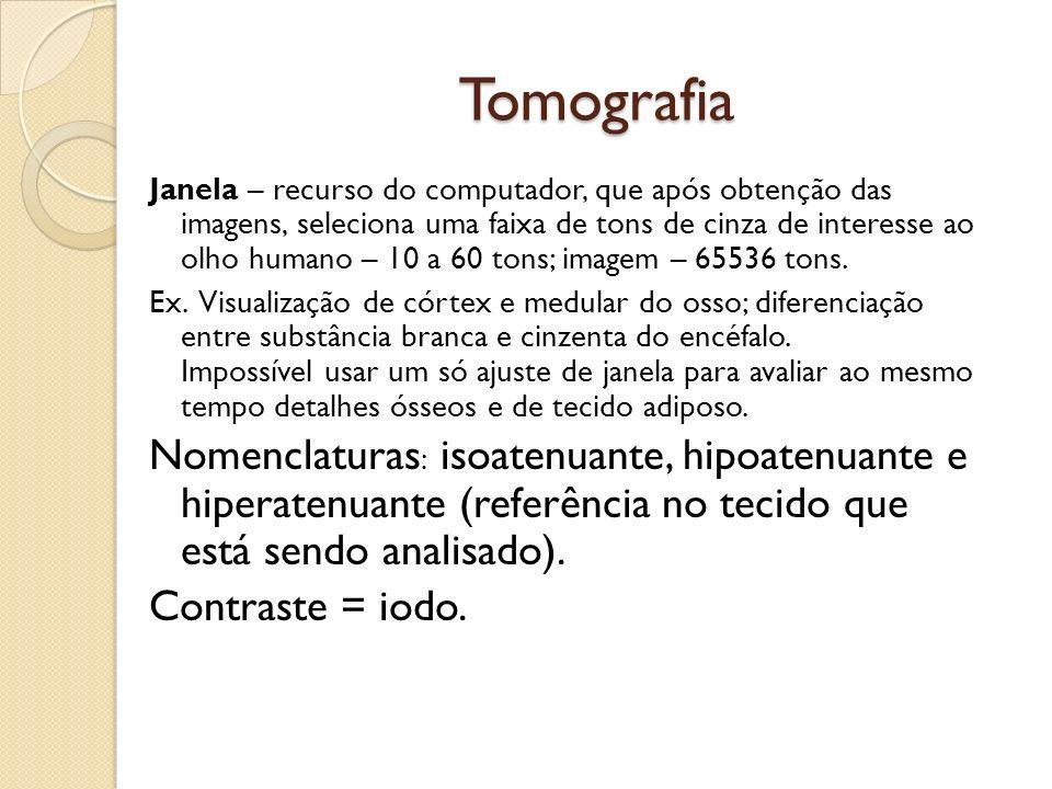 Tomografia Janela – recurso do computador, que após obtenção das imagens, seleciona uma faixa de tons de cinza de interesse ao olho humano – 10 a 60 tons; imagem – 65536 tons.