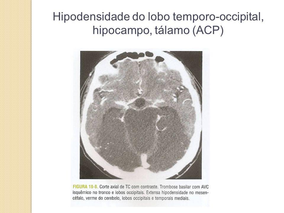 Hipodensidade do lobo temporo-occipital, hipocampo, tálamo (ACP)