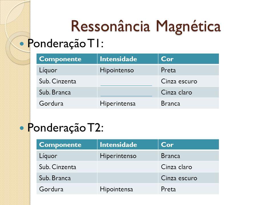 Ressonância Magnética Ressonância Magnética Ponderação T1: Ponderação T2: ComponenteIntensidadeCor LíquorHipointensoPreta Sub.
