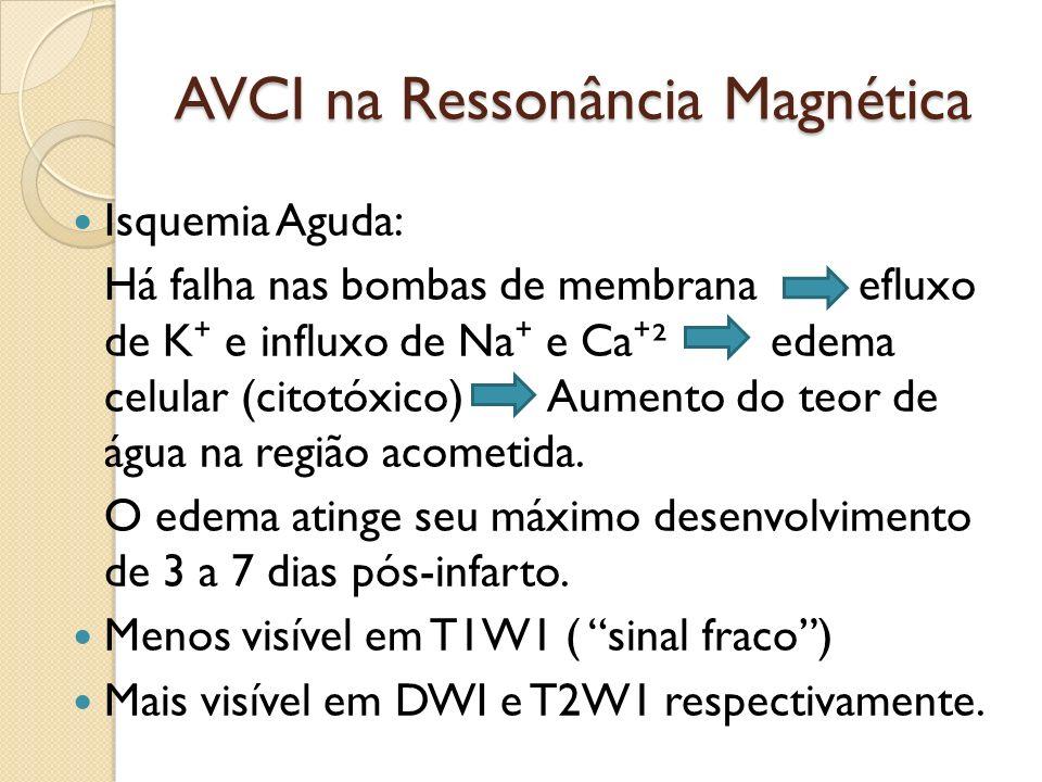 AVCI na Ressonância Magnética Isquemia Aguda: Há falha nas bombas de membrana efluxo de K e influxo de Na e Ca ² edema celular (citotóxico) Aumento do teor de água na região acometida.