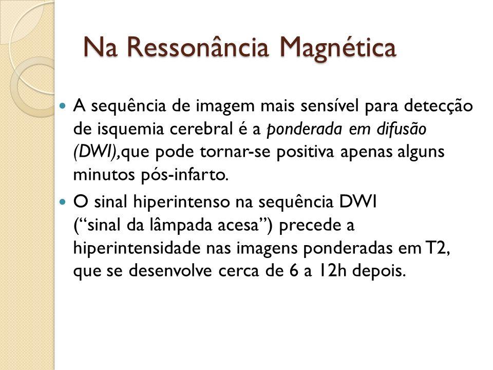 Na Ressonância Magnética A sequência de imagem mais sensível para detecção de isquemia cerebral é a ponderada em difusão (DWI),que pode tornar-se positiva apenas alguns minutos pós-infarto.