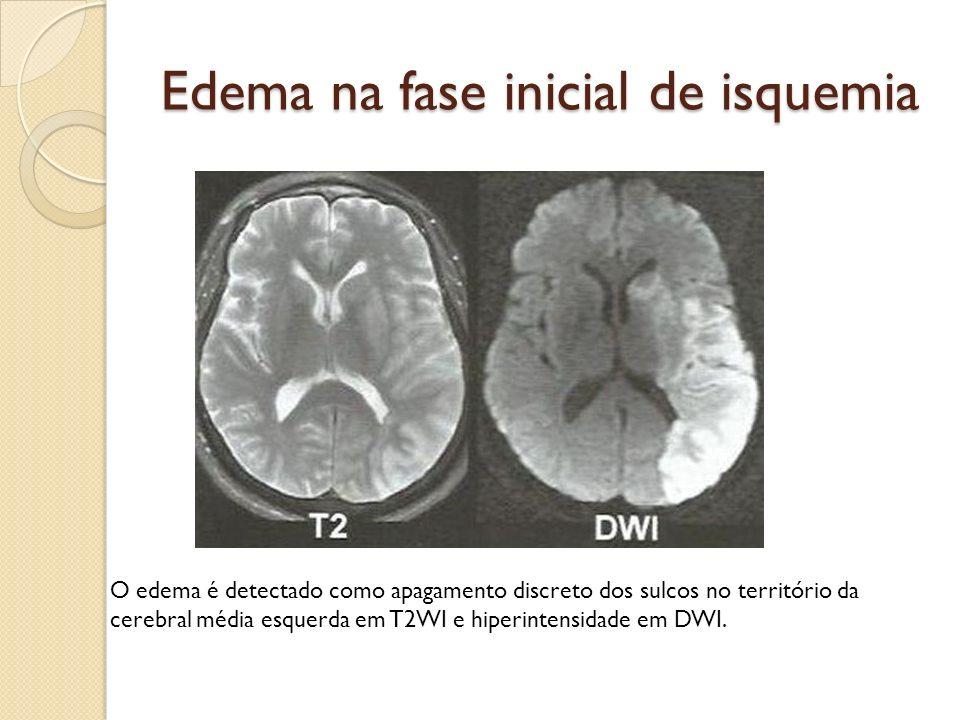 Edema na fase inicial de isquemia O edema é detectado como apagamento discreto dos sulcos no território da cerebral média esquerda em T2WI e hiperintensidade em DWI.