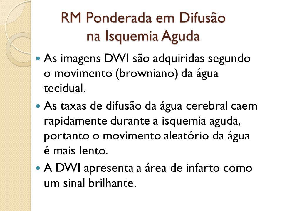 RM Ponderada em Difusão na Isquemia Aguda As imagens DWI são adquiridas segundo o movimento (browniano) da água tecidual.