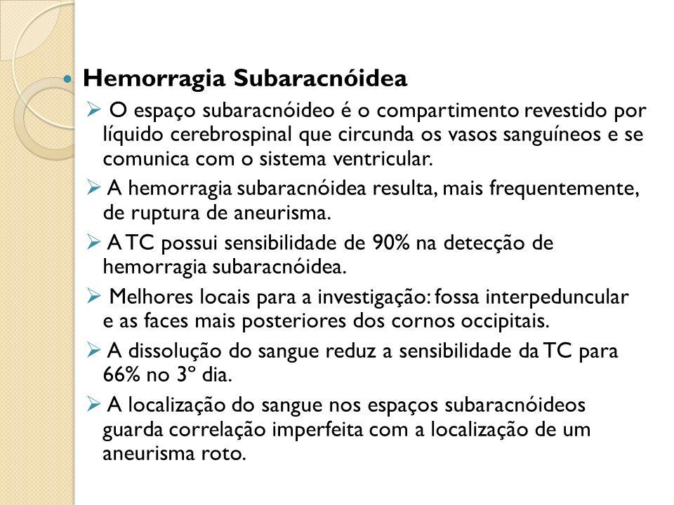 Hemorragia Subaracnóidea O espaço subaracnóideo é o compartimento revestido por líquido cerebrospinal que circunda os vasos sanguíneos e se comunica com o sistema ventricular.