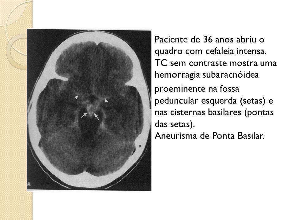 Paciente de 36 anos abriu o quadro com cefaleia intensa.