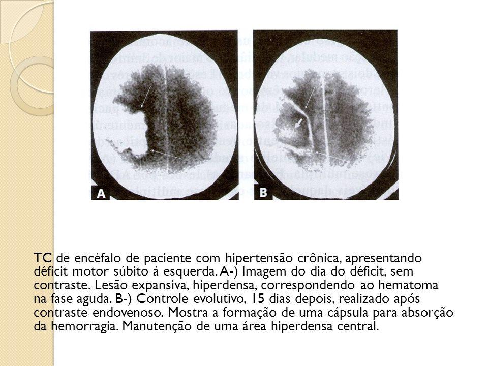 TC de encéfalo de paciente com hipertensão crônica, apresentando déficit motor súbito à esquerda.