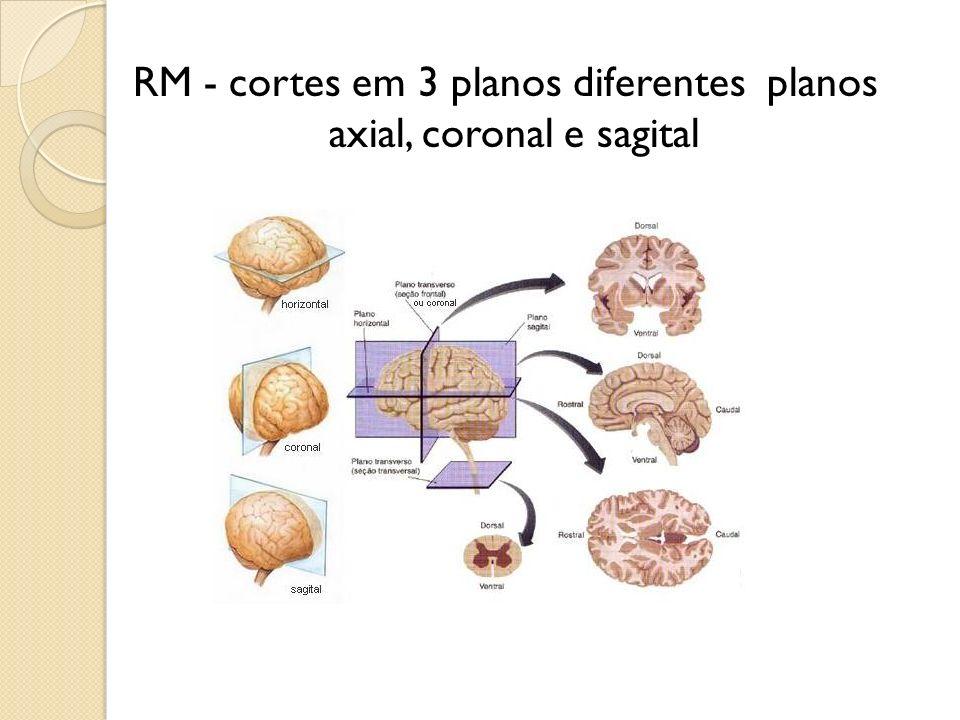 RM - cortes em 3 planos diferentes planos axial, coronal e sagital