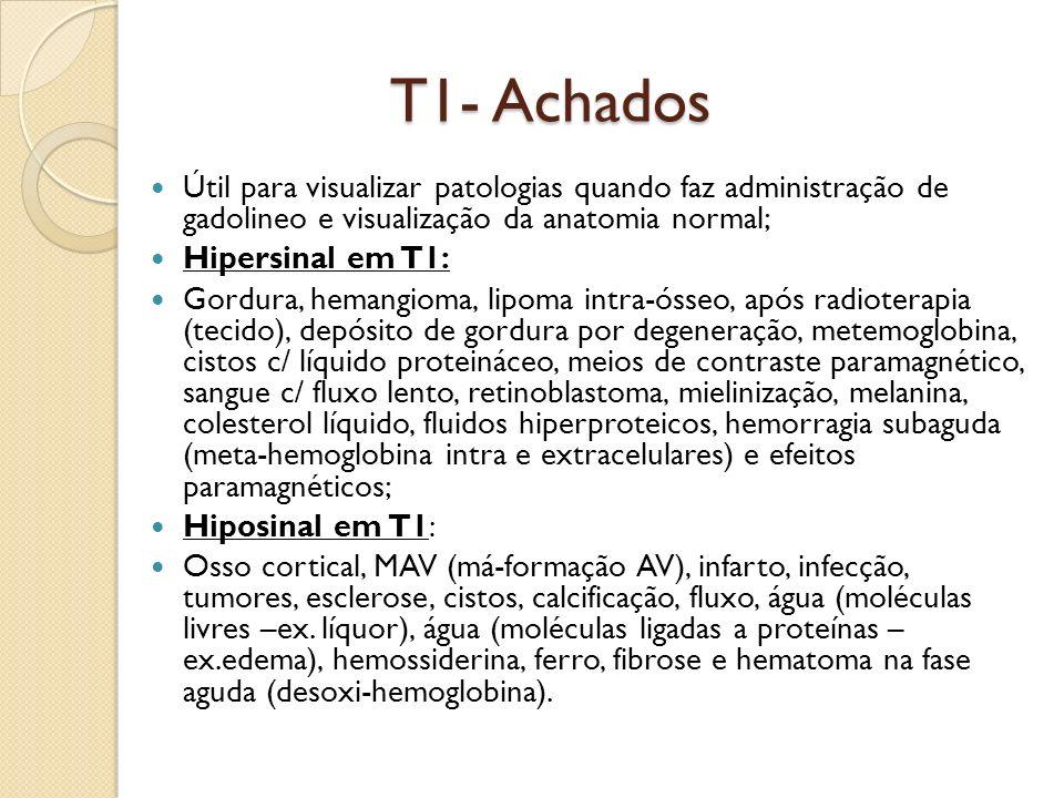 T1- Achados Útil para visualizar patologias quando faz administração de gadolineo e visualização da anatomia normal; Hipersinal em T1: Gordura, hemangioma, lipoma intra-ósseo, após radioterapia (tecido), depósito de gordura por degeneração, metemoglobina, cistos c/ líquido proteináceo, meios de contraste paramagnético, sangue c/ fluxo lento, retinoblastoma, mielinização, melanina, colesterol líquido, fluidos hiperproteicos, hemorragia subaguda (meta-hemoglobina intra e extracelulares) e efeitos paramagnéticos; Hiposinal em T1: Osso cortical, MAV (má-formação AV), infarto, infecção, tumores, esclerose, cistos, calcificação, fluxo, água (moléculas livres –ex.