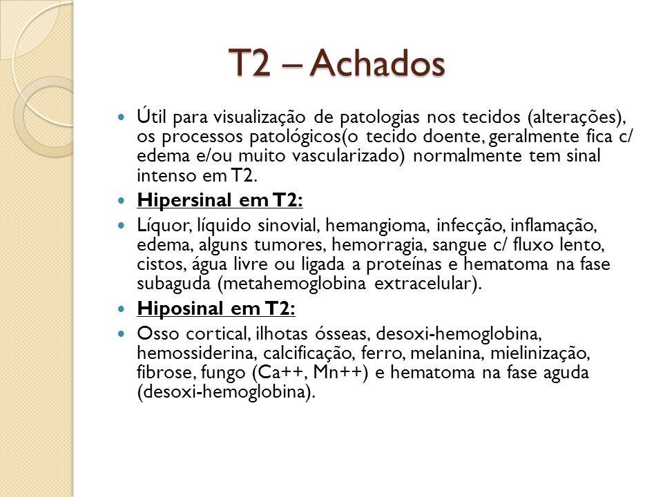 T2 – Achados Útil para visualização de patologias nos tecidos (alterações), os processos patológicos(o tecido doente, geralmente fica c/ edema e/ou muito vascularizado) normalmente tem sinal intenso em T2.
