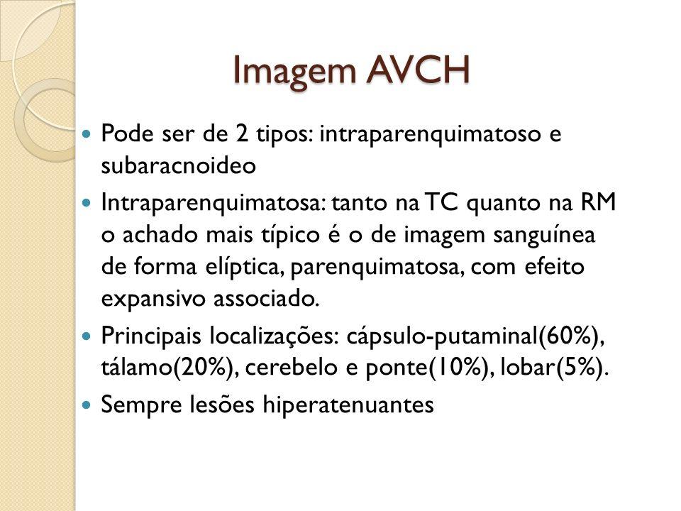 Imagem AVCH Imagem AVCH Pode ser de 2 tipos: intraparenquimatoso e subaracnoideo Intraparenquimatosa: tanto na TC quanto na RM o achado mais típico é o de imagem sanguínea de forma elíptica, parenquimatosa, com efeito expansivo associado.