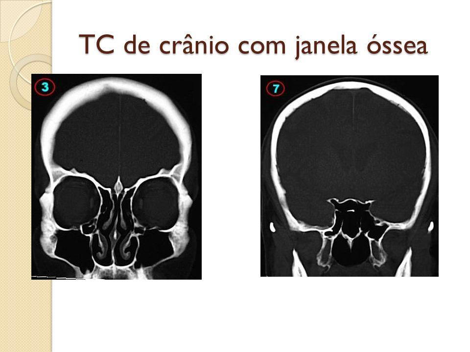 TC de crânio com janela óssea