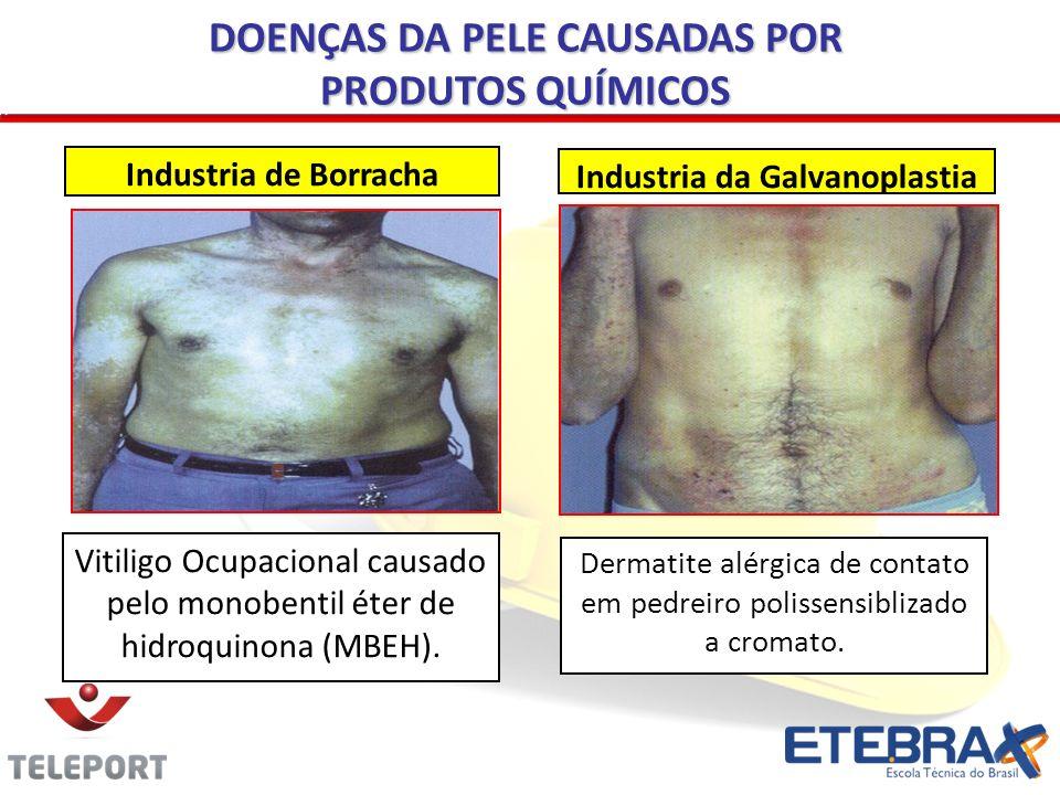 Vitiligo Ocupacional causado pelo monobentil éter de hidroquinona (MBEH). Industria de Borracha Dermatite alérgica de contato em pedreiro polissensibl