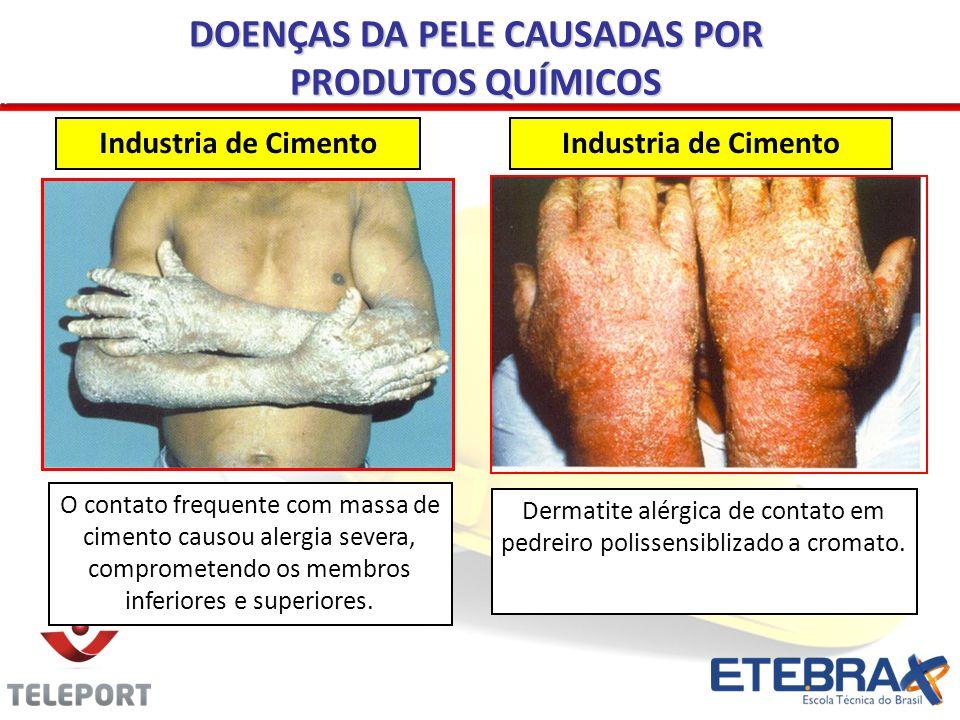 Industria de Cimento O contato frequente com massa de cimento causou alergia severa, comprometendo os membros inferiores e superiores. Dermatite alérg