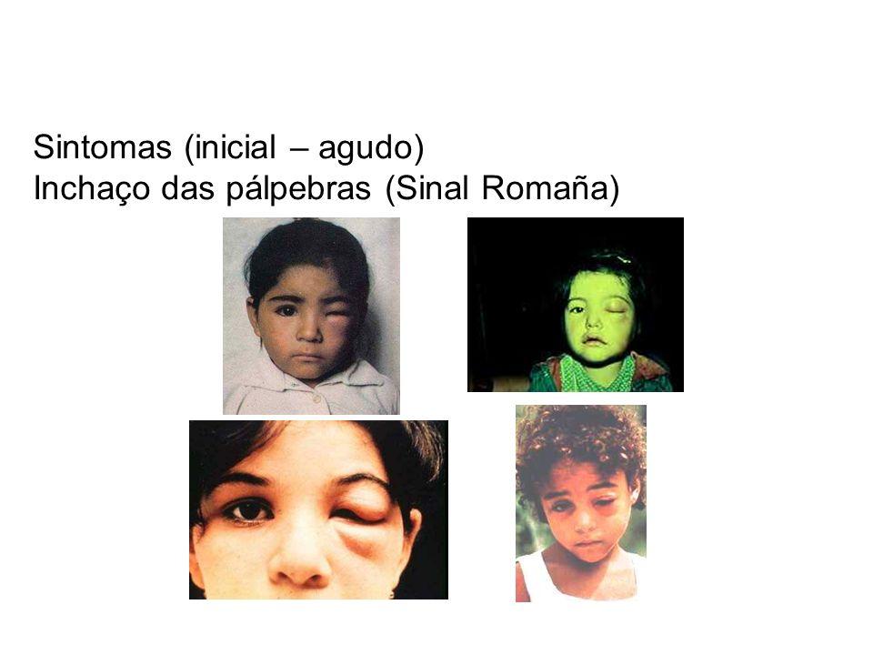 Sintomas (inicial – agudo) Inchaço das pálpebras (Sinal Romaña)