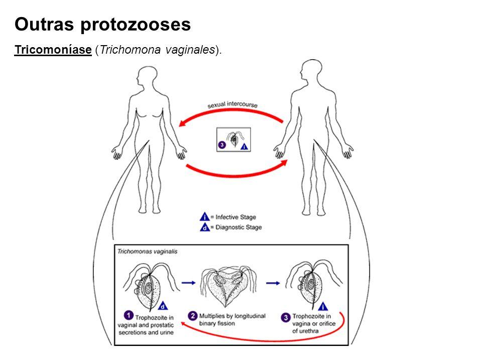 Tricomoníase (Trichomona vaginales). Outras protozooses