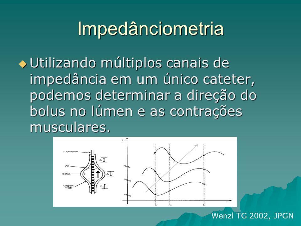 Impedânciometria Utilizando múltiplos canais de impedância em um único cateter, podemos determinar a direção do bolus no lúmen e as contrações muscula