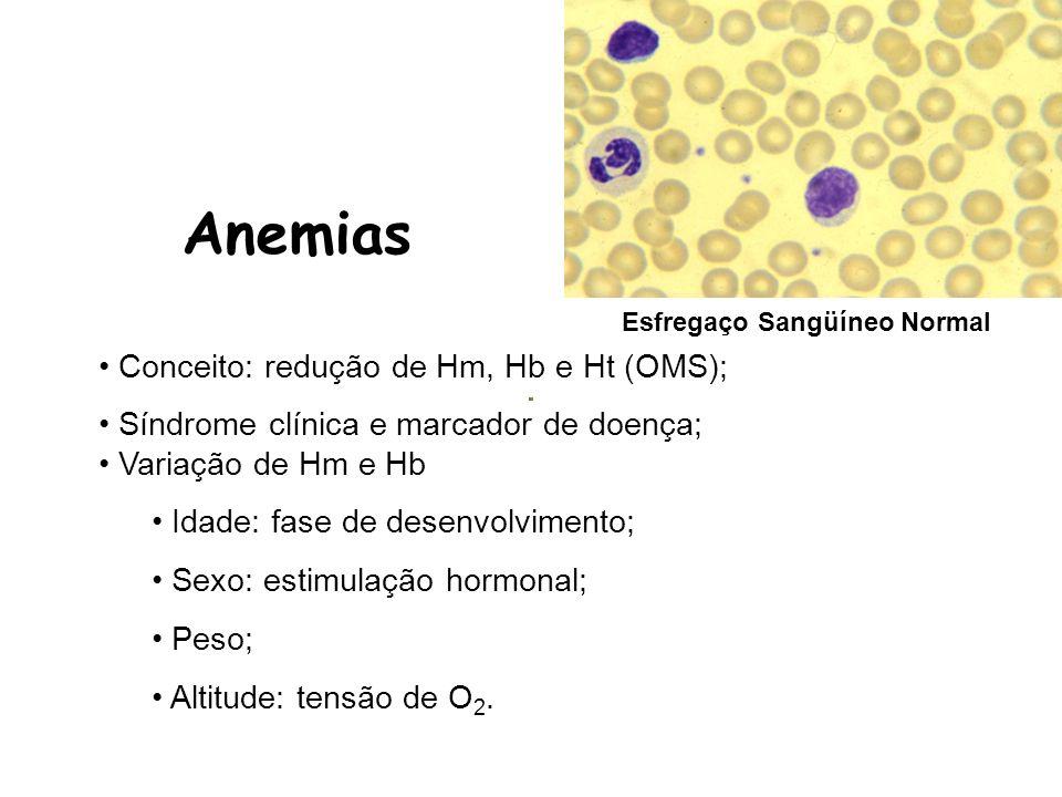 Achados laboratoriais –Hemácias: normocítica e normocrômica; –Pancitopenia/ Citopenias; Reticulócitos normal ou diminuído; Mielograma: poucos linfócitos, plasmócitos e fibroblastos (biópsia); –No mielograma (punção) a MO hipocelular, muito tecido gorduroso; Aumento Fe/ Ferritina, EPO e Sat.