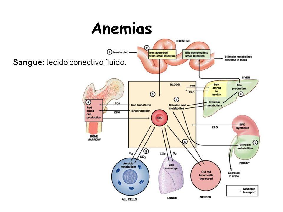 Anemias Macrocíticas Grupo de anemias com distúrbio na síntese de DNA Com várias alterações cromossômicas: eritropoese inficiente; Anemias Megalobláticas: presença de precursores megaloblastóides –Deficiência de vit.