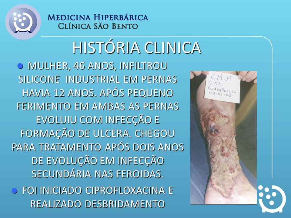 HISTÓRIA CLINICA MULHER, 46 ANOS, INFILTROU SILICONE INDUSTRIAL EM PERNAS HAVIA 12 ANOS. APÓS PEQUENO FERIMENTO EM AMBAS AS PERNAS EVOLUIU COM INFECÇÃ