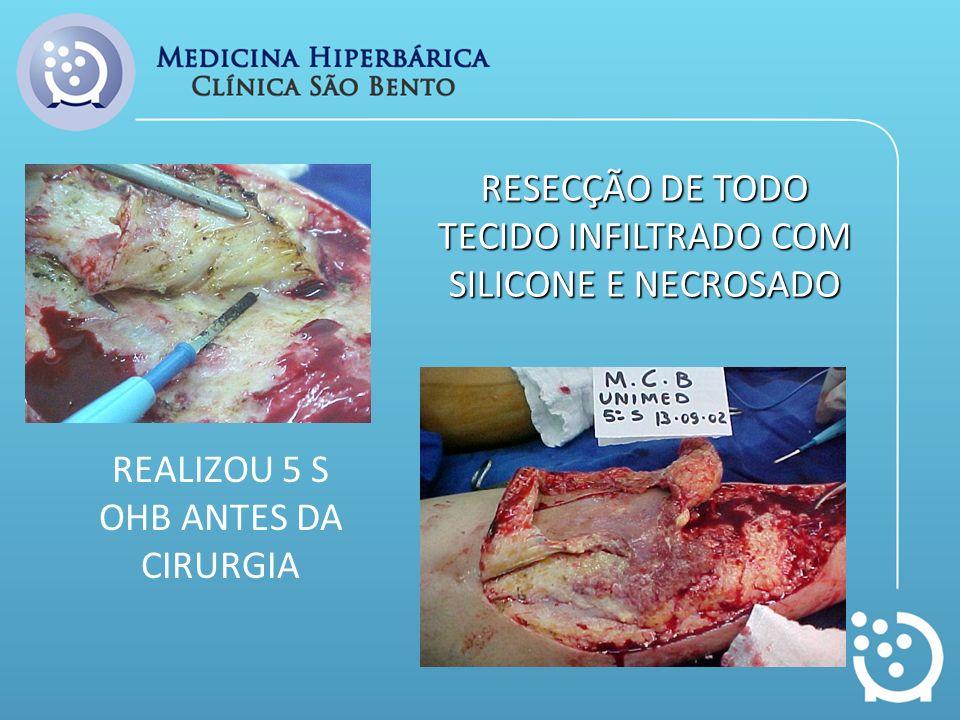 RESECÇÃO DE TODO TECIDO INFILTRADO COM SILICONE E NECROSADO REALIZOU 5 S OHB ANTES DA CIRURGIA