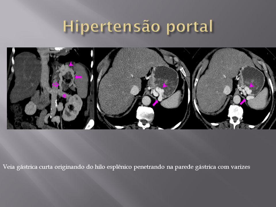 Veia gástrica curta originando do hilo esplênico penetrando na parede gástrica com varizes