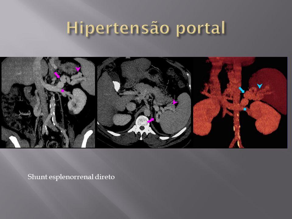 Shunt esplenorrenal direto