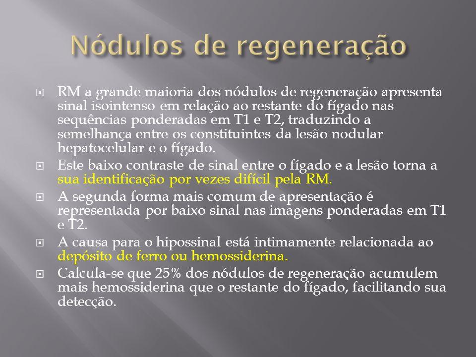 RM a grande maioria dos nódulos de regeneração apresenta sinal isointenso em relação ao restante do fígado nas sequências ponderadas em T1 e T2, tradu