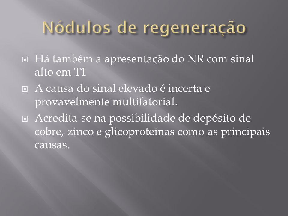 Há também a apresentação do NR com sinal alto em T1 A causa do sinal elevado é incerta e provavelmente multifatorial. Acredita-se na possibilidade de