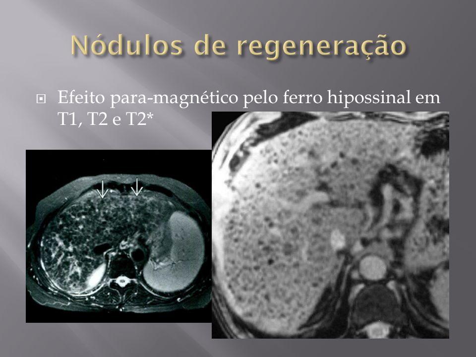 Efeito para-magnético pelo ferro hipossinal em T1, T2 e T2*