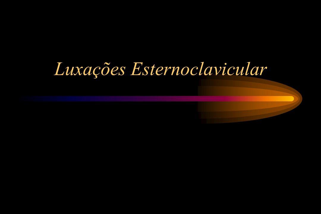 Luxações Esternoclavicular