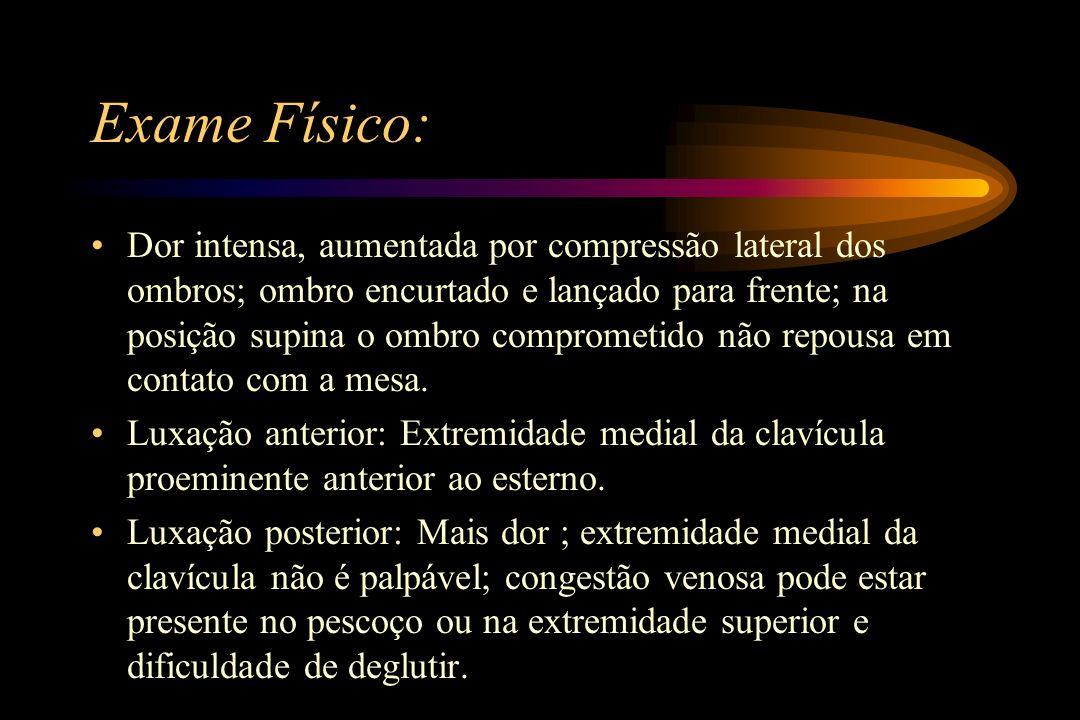 Exame Físico: Dor intensa, aumentada por compressão lateral dos ombros; ombro encurtado e lançado para frente; na posição supina o ombro comprometido