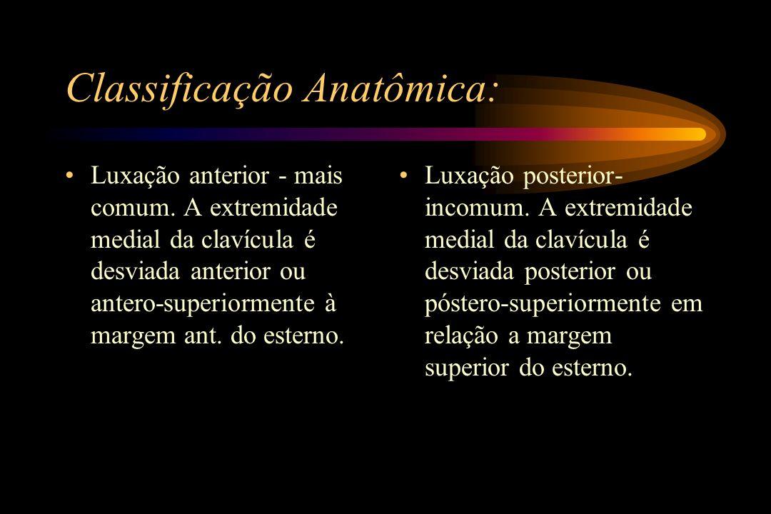 Classificação Anatômica: Luxação anterior - mais comum. A extremidade medial da clavícula é desviada anterior ou antero-superiormente à margem ant. do