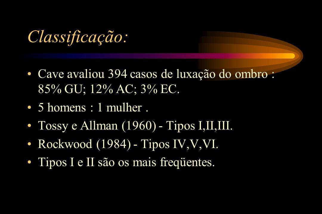 Classificação: Cave avaliou 394 casos de luxação do ombro : 85% GU; 12% AC; 3% EC. 5 homens : 1 mulher. Tossy e Allman (1960) - Tipos I,II,III. Rockwo