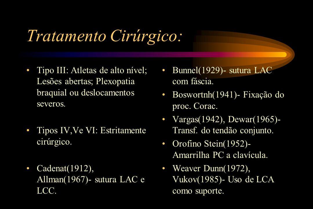 Classificação Anatômica: Luxação anterior - mais comum.