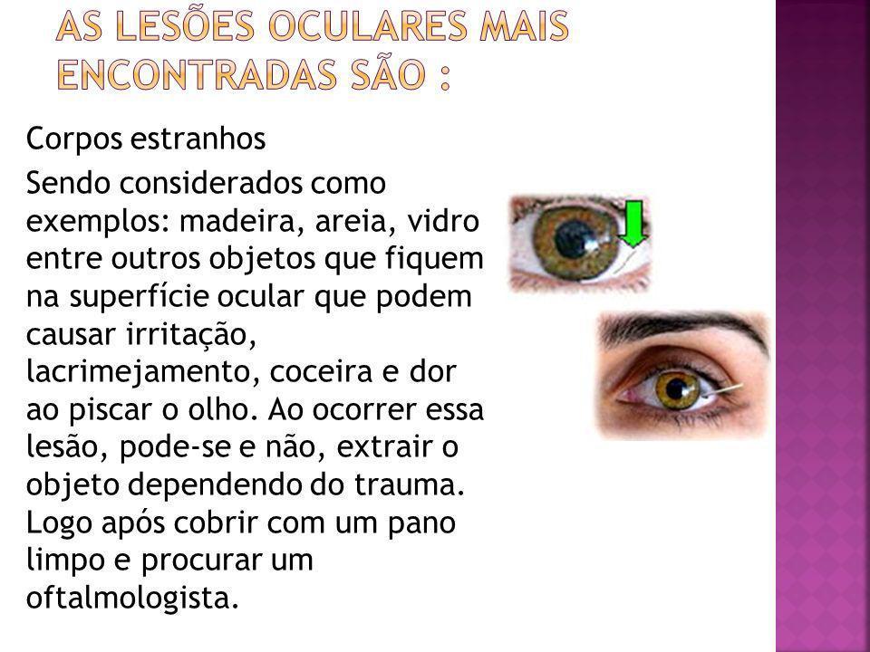 Corpos estranhos Sendo considerados como exemplos: madeira, areia, vidro entre outros objetos que fiquem na superfície ocular que podem causar irritaç