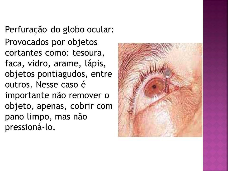 Perfuração do globo ocular: Provocados por objetos cortantes como: tesoura, faca, vidro, arame, lápis, objetos pontiagudos, entre outros. Nesse caso é