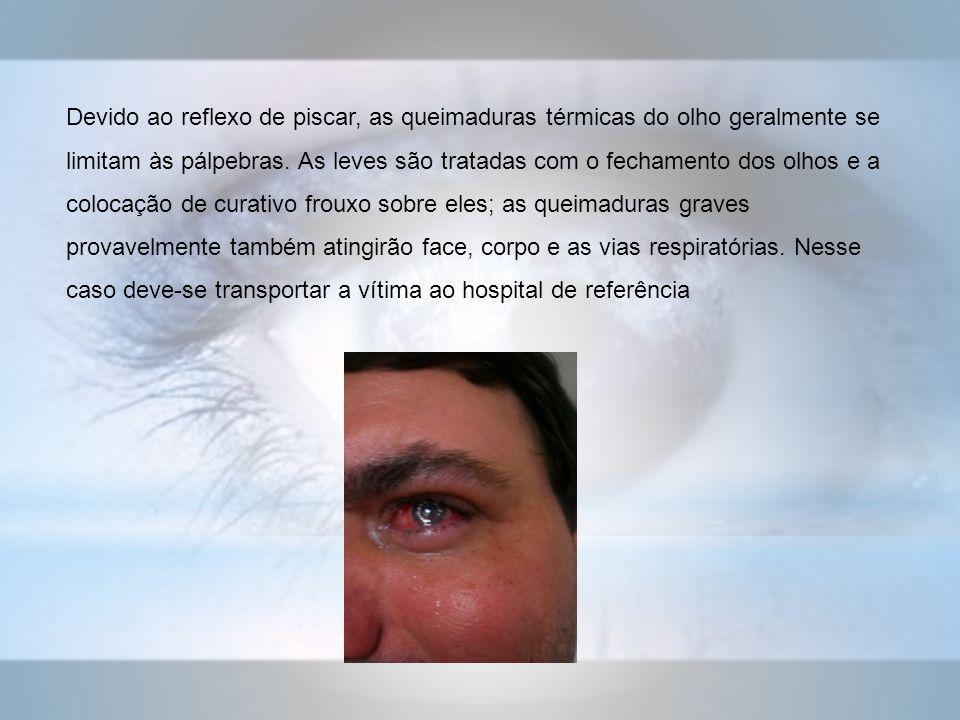 Devido ao reflexo de piscar, as queimaduras térmicas do olho geralmente se limitam às pálpebras.